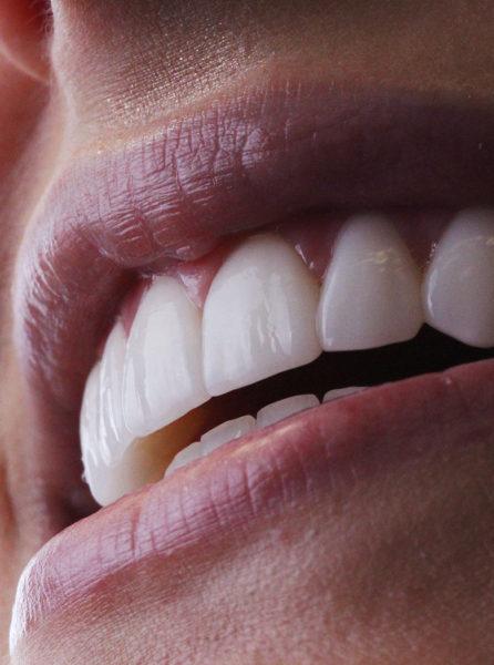 Porcelana dentária by Doctor Alysson Resende - Ortodontista e Dentista em BH