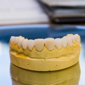 Molde dente by Dr. Alysson Resende