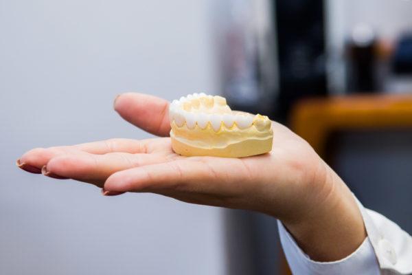 Molde dentário by Dr. Alysson Resende