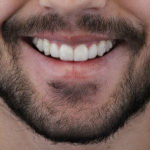 WhatsApp homem de barba invisalign odontologia Dr Alysson Resende