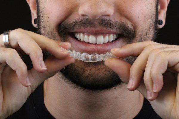 WhatsApp homem invisalign odontologia Dr Alysson Resende