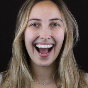 WhatsApp mulher invisalign odontologia Dr Alysson Resende