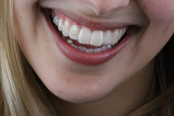 WhatsApp invisalign odontologia Dr Alysson Resende