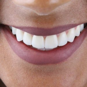 WhatsApp perfeito sorriso de mulher Dr Alysson Resende