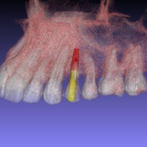 A tecnologia 3D no implante dentário