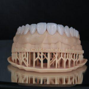 Sorriso hi-tech, técnica Digital Smile Design - DSD