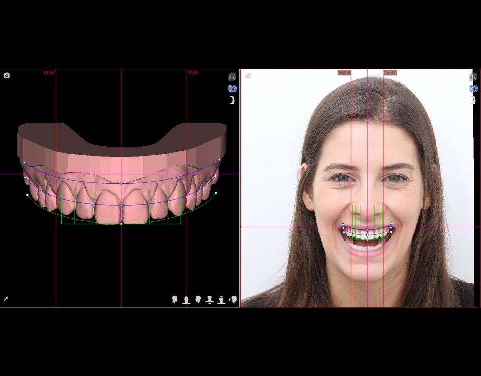 Digital Smile Design, seu sorriso confiante