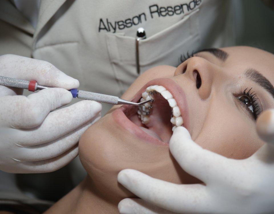 Acredite: podemos esconder o seu aparelho fixo, ortodontia lingual