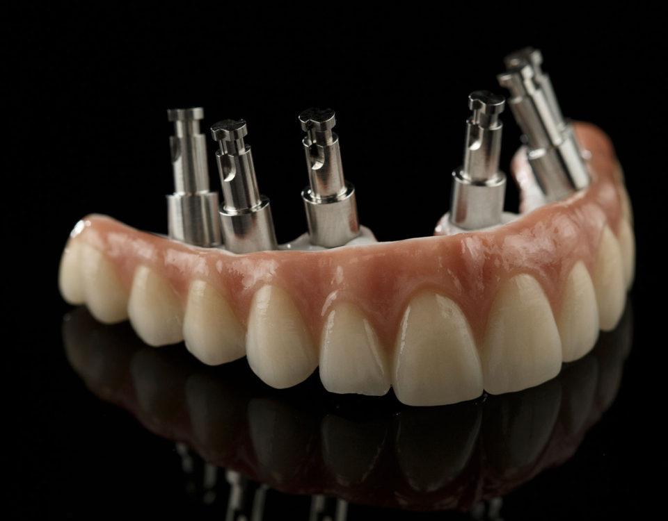 Como é feito o implante dentário total tipo protocolo?