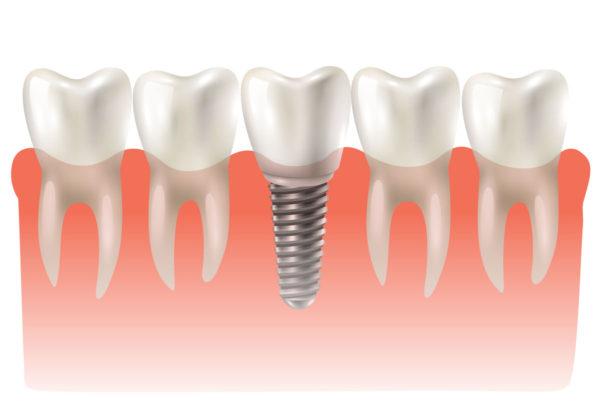 O que é implante dentário? Como funciona?