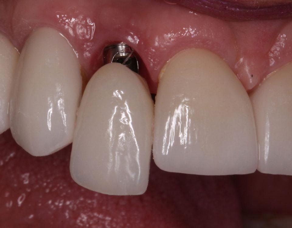 O que é cicatrizador de implante dentário?