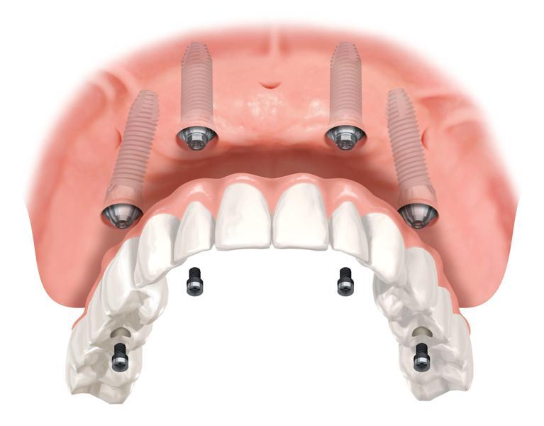 Principais dúvidas sobre implante dentário – Parte 1