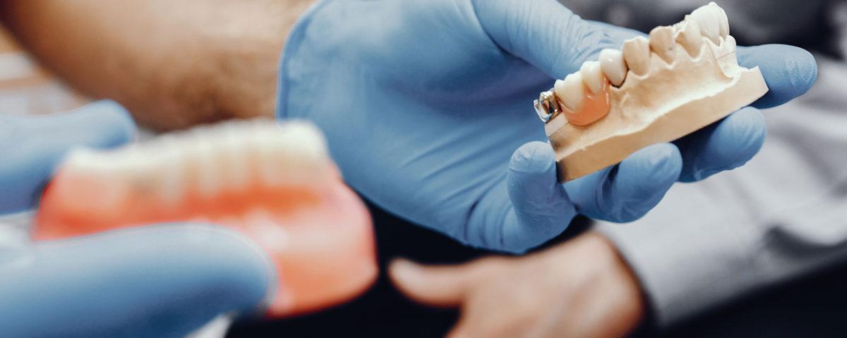 Principais dúvidas sobre implante dentário – Parte 2