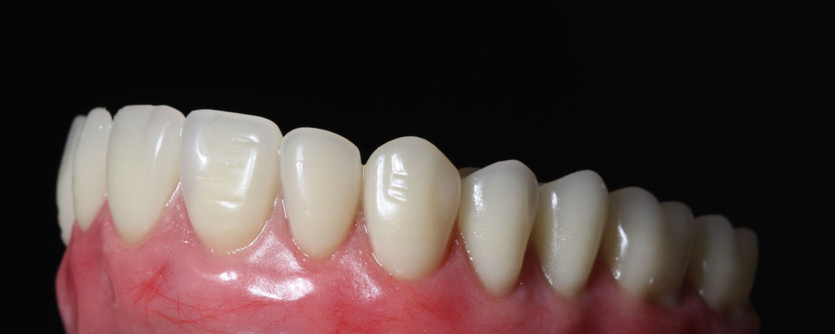Qual o valor de implante dentário?
